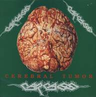 Carcass: Cerebral Tumor